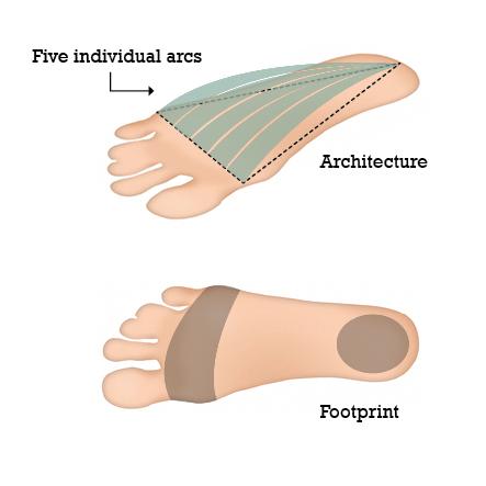 Fuß mit fünf individuellen Bögen