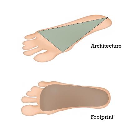 Flexibler und flacher Fuß